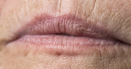 Thin or Uneven Lips