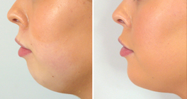 Treatment Trend - Lower Facial Definition